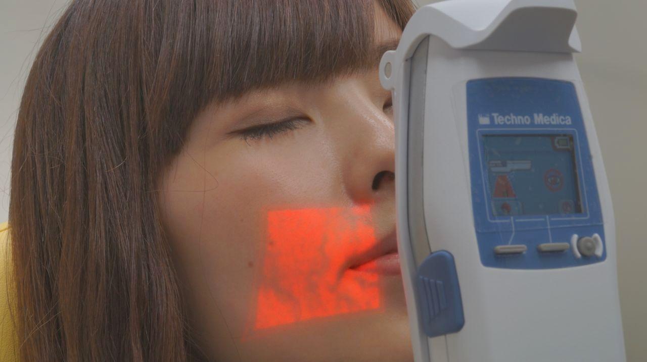 静脈可視化装置