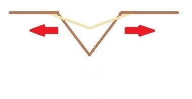 ボトックスによるしわの治療イメージ