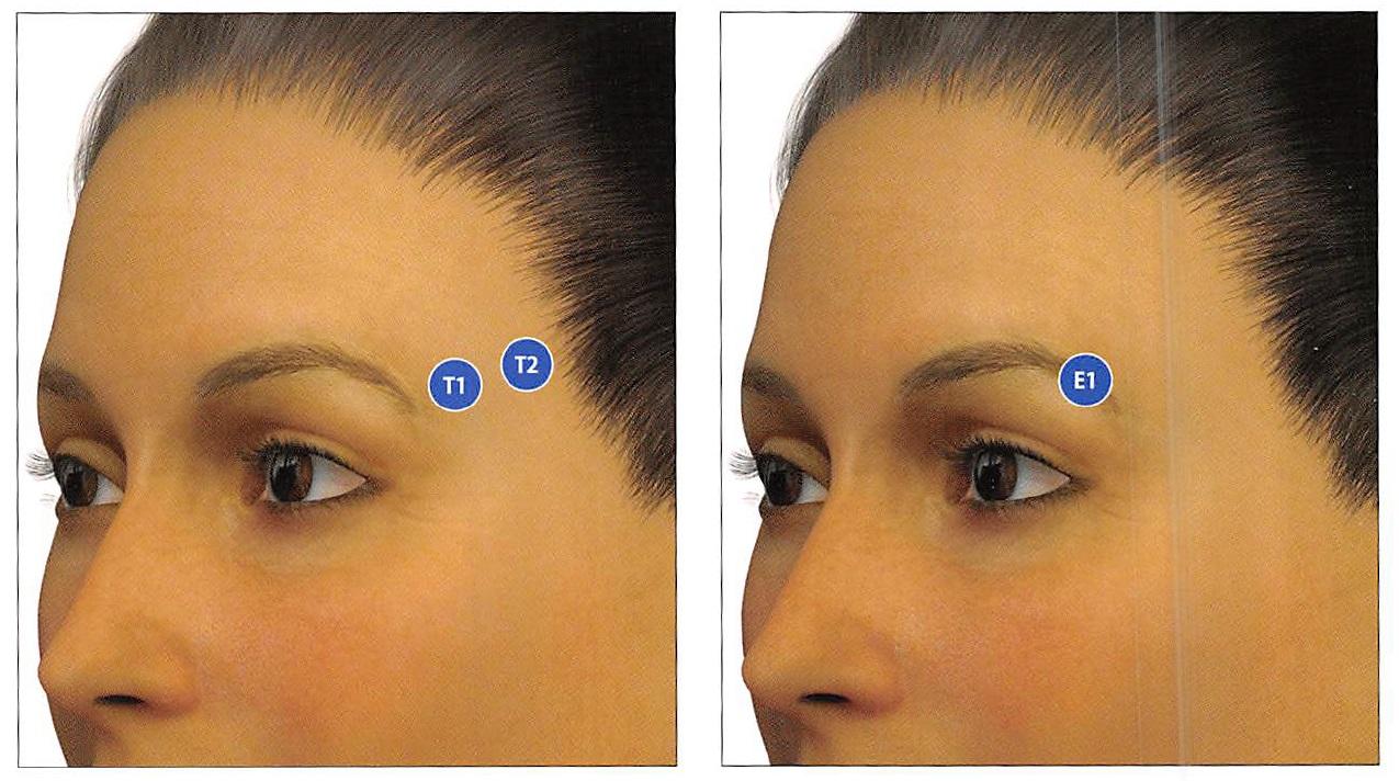 側頭部(T)及び眉毛尾部(E)のMDコード