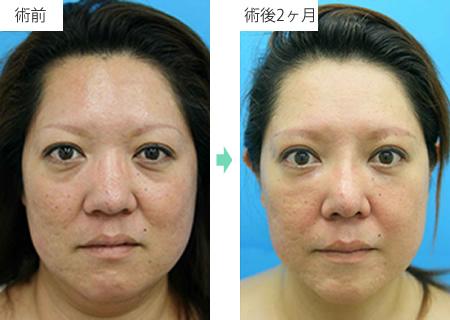 鼻尖縮小術 症例1