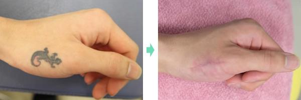 タトゥー切除 症例1