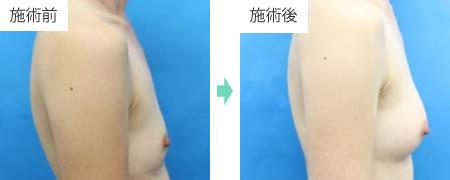 コンデンスリッチ豊胸 症例1