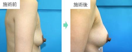 ヒアルロン酸豊胸 症例1