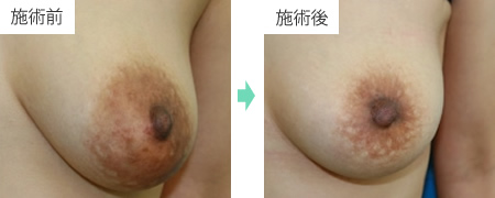 乳輪縮小 症例1