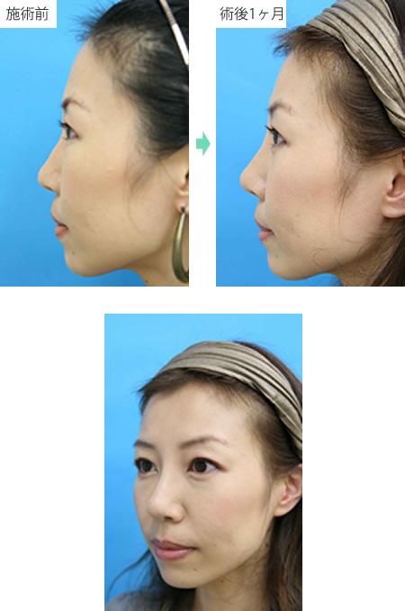 隆鼻術 症例1
