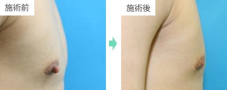 乳頭縮小 症例1