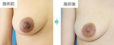 乳頭縮小 症例2