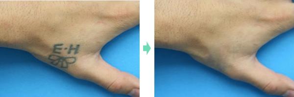 タトゥーレーザー除去 症例2