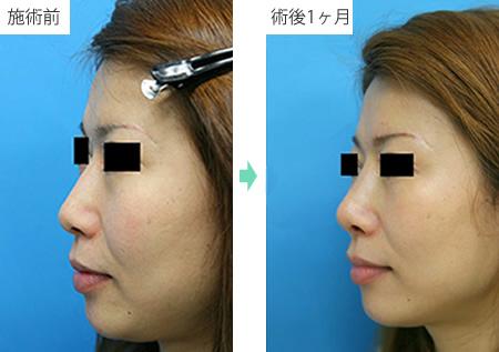 隆鼻術 症例2