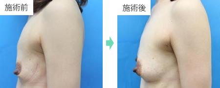 コンデンスリッチ豊胸 症例2