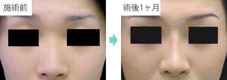 隆鼻術 症例3