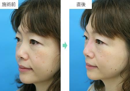隆鼻術 ヒアルロン酸注射 症例1