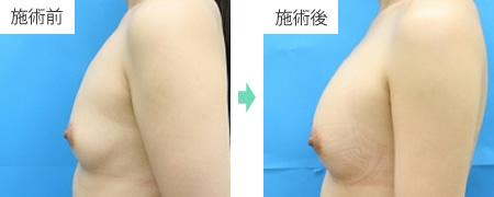コンデンスリッチ豊胸 症例4