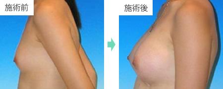 コンデンスリッチ豊胸 症例5