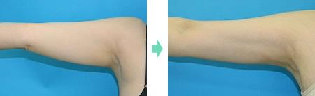 二の腕 症例1