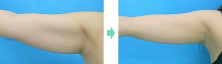 二の腕 症例2
