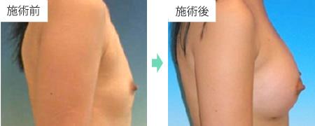 コンデンスリッチ豊胸 症例6