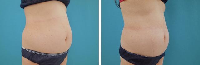 クールスカルプティング腹部の症例写真斜め
