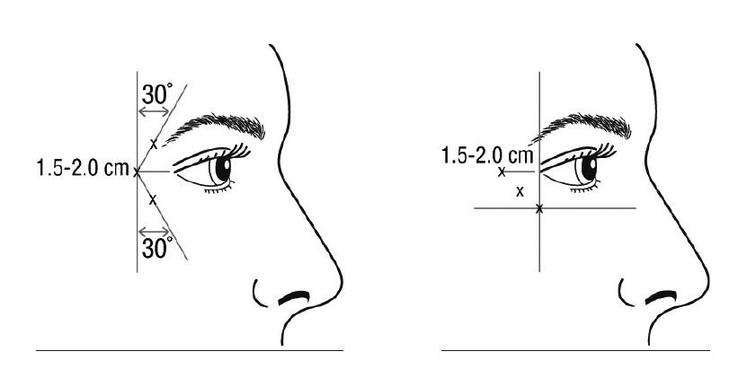 目尻ボトックスの注射方法