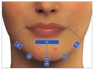 下顎部(C)のMDコード