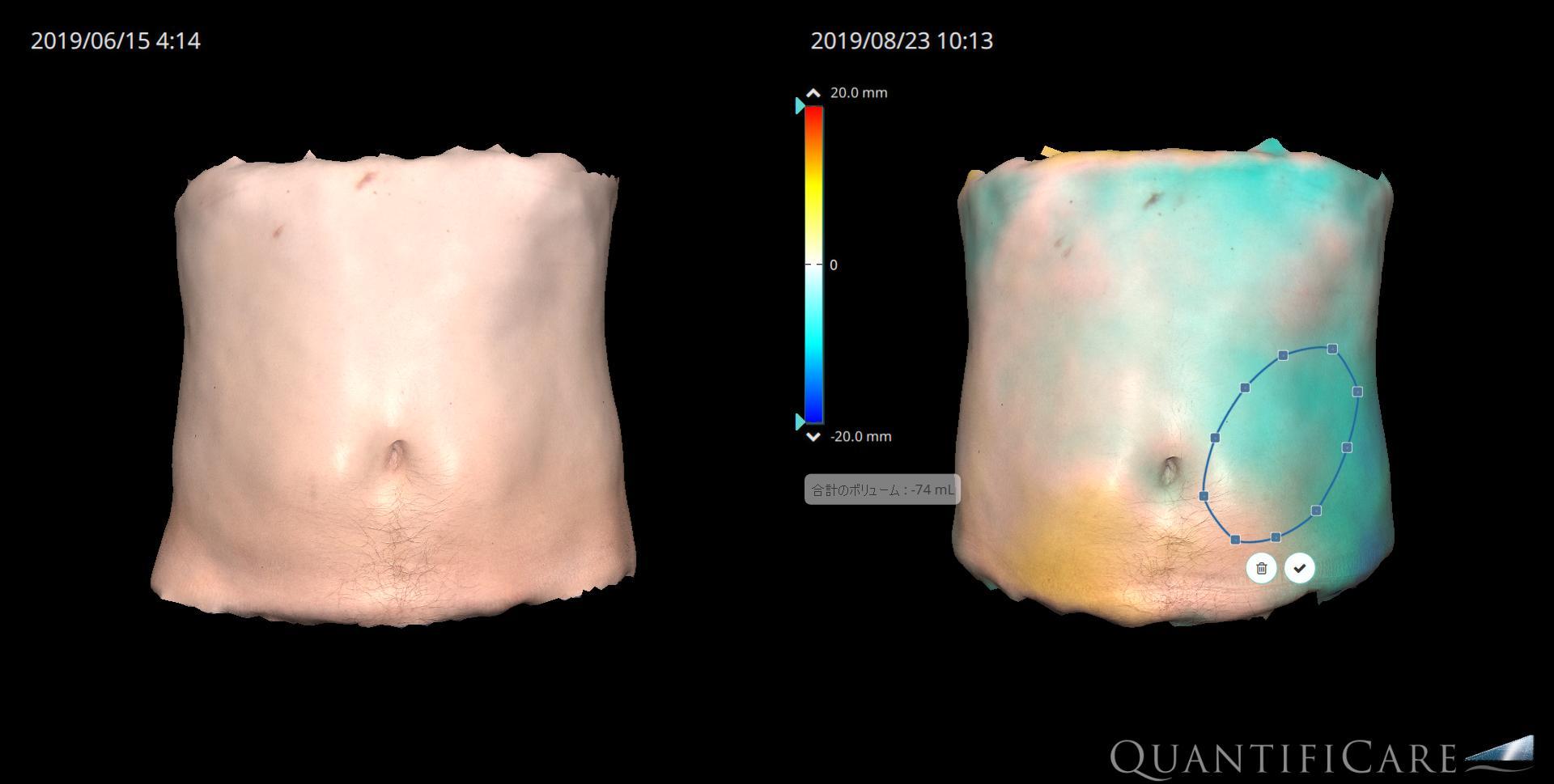 クールスカルプティング施術前後の脂肪量の変化