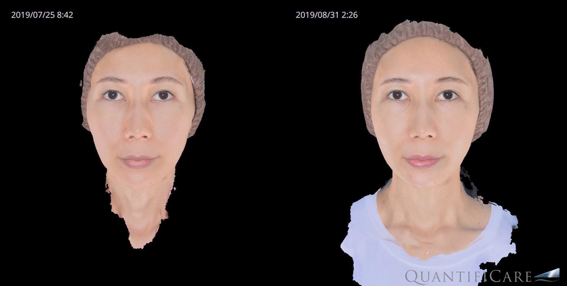 脂肪注入(額・こめかみ・ほほ) before&after 正面