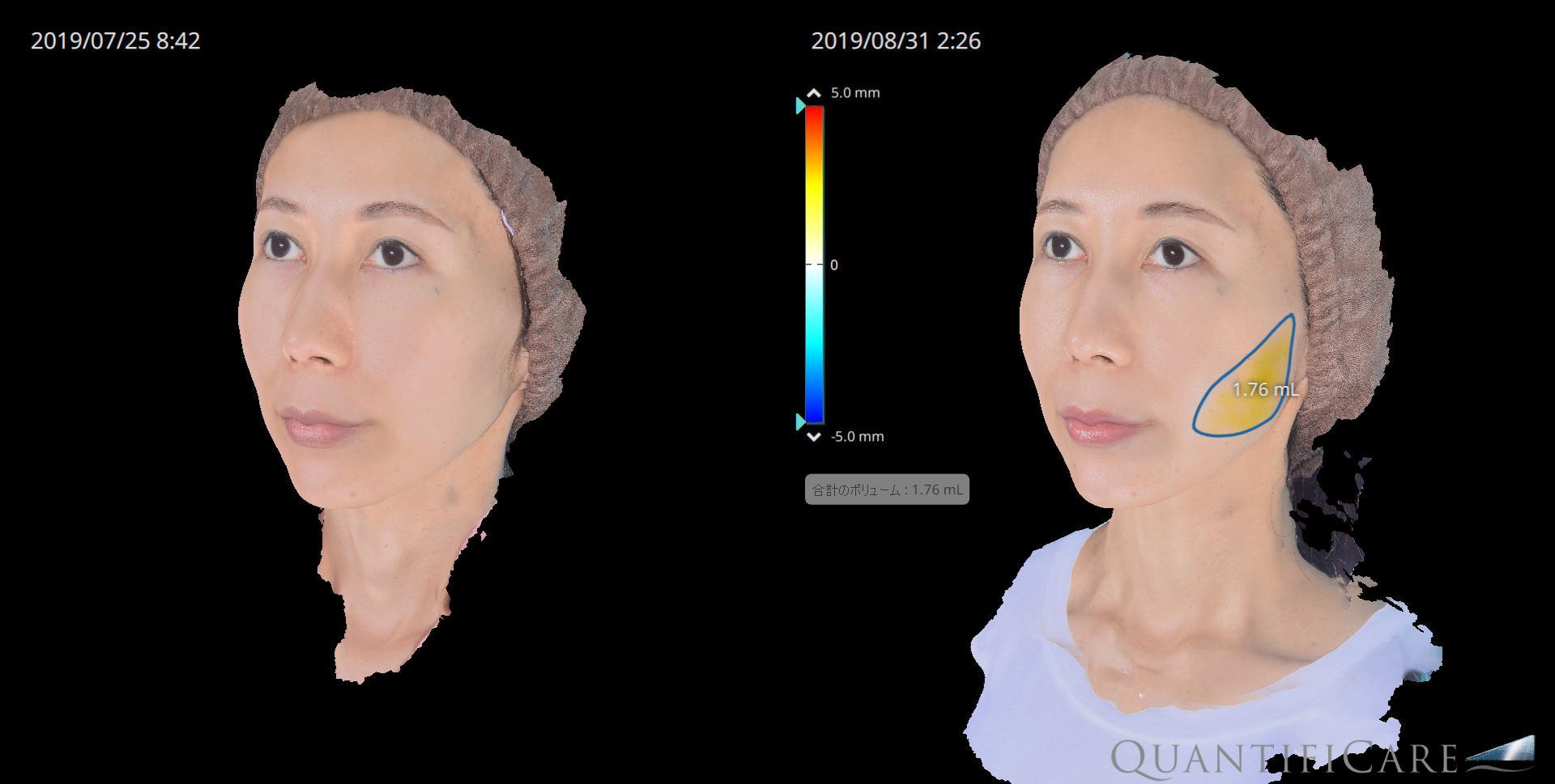 脂肪注入) before&after 左頬の脂肪増加量