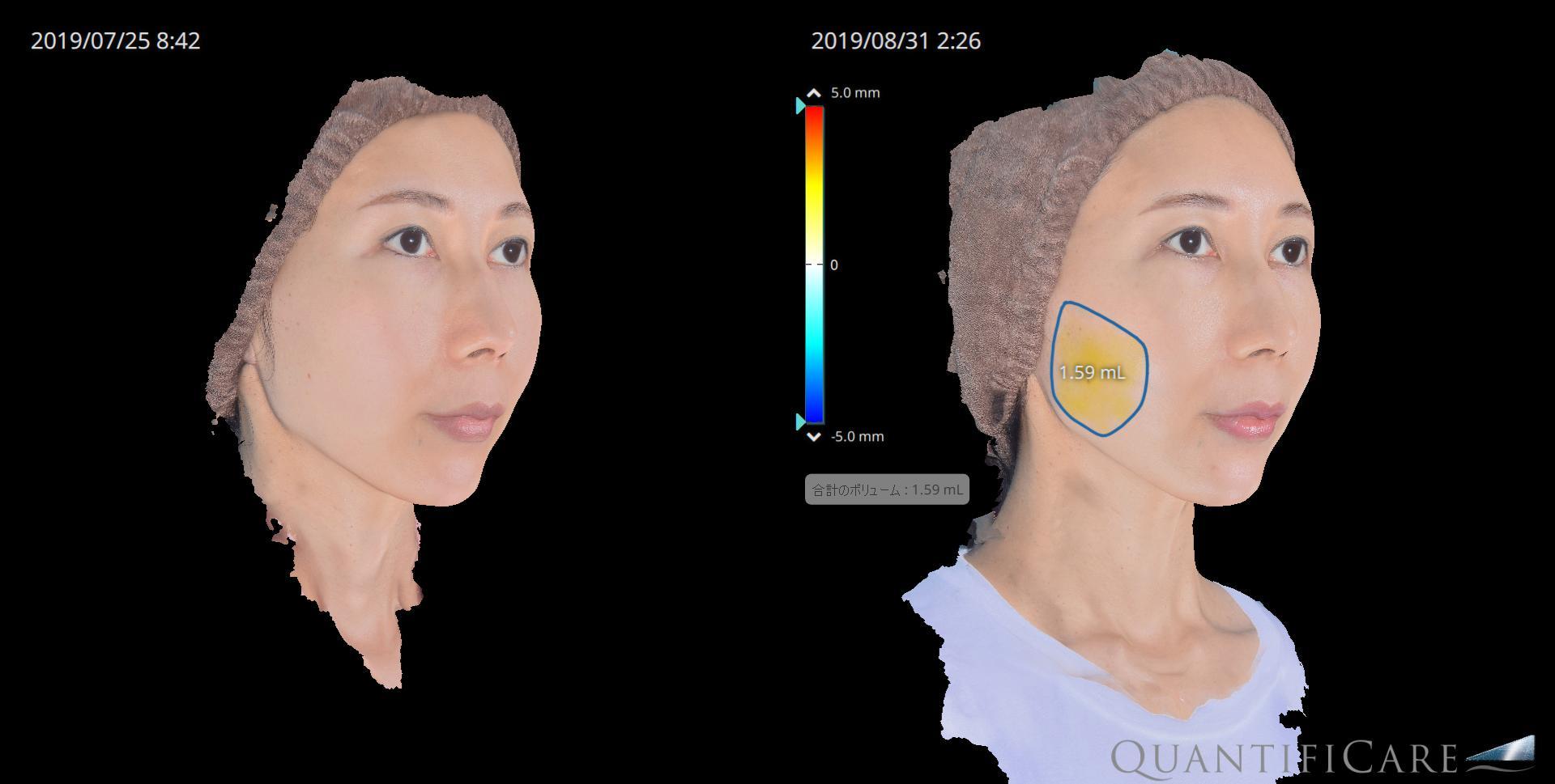 脂肪注入 before&after 右頬の脂肪増加量