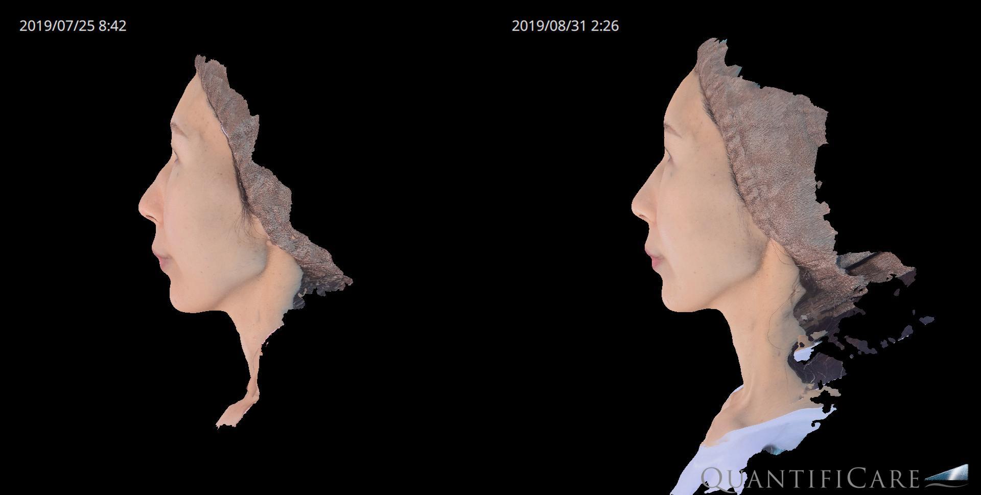 脂肪注入(額・こめかみ・ほほ) before&after 横