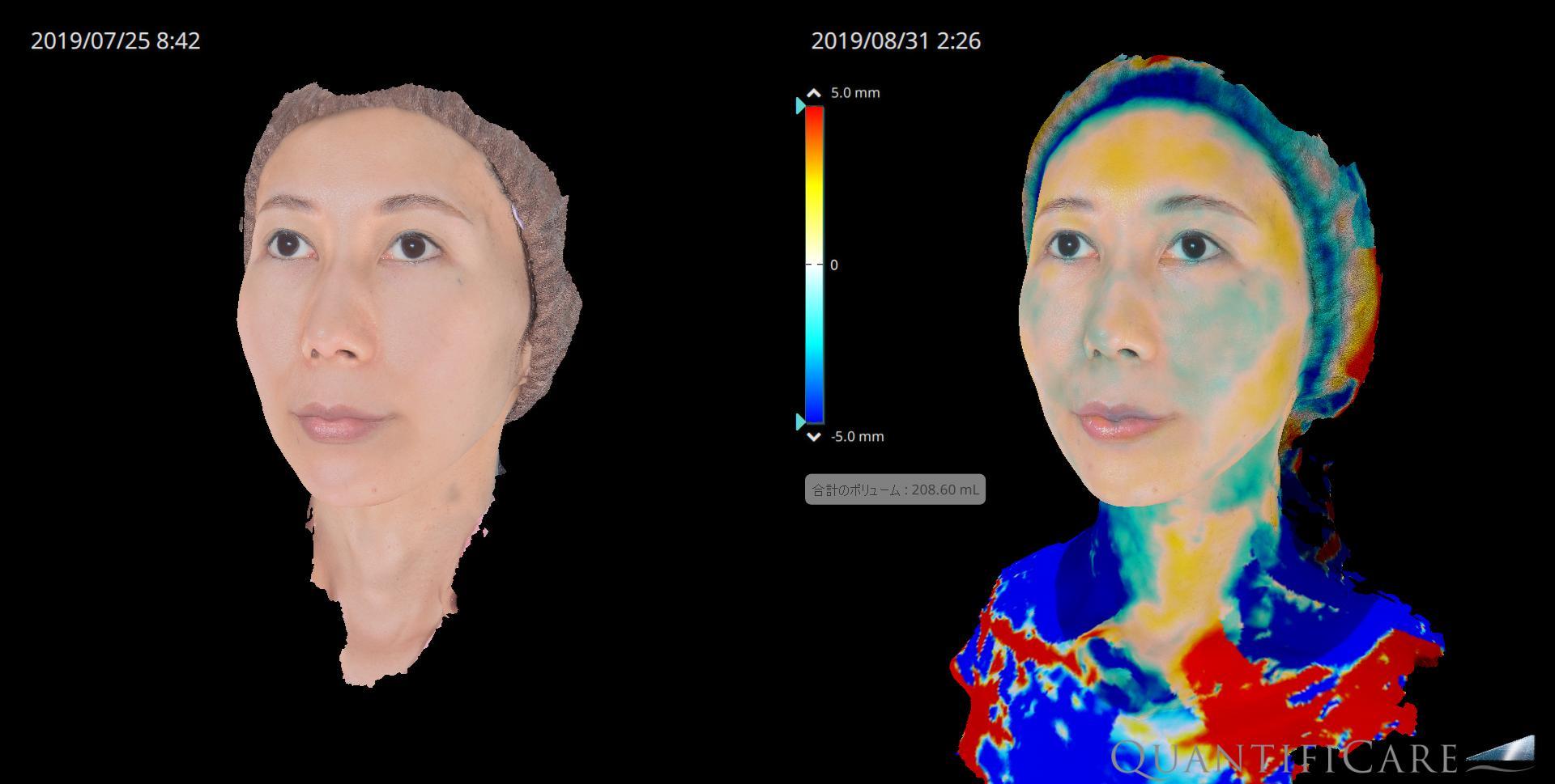 脂肪注入) before&after ボリューム変化