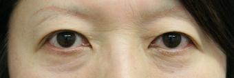 上まぶたのたるみ眉毛下切開法+二重埋没法【エースクリニック】クマ治療_名古屋・大阪梅田