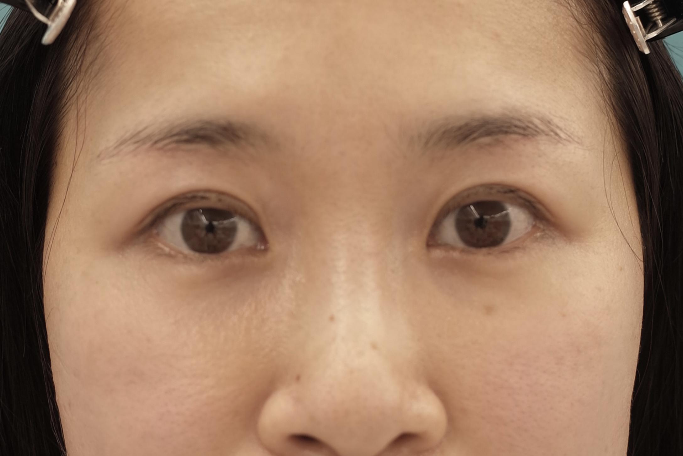 眉毛下切開法【エースクリニック】名古屋院・大阪梅田院