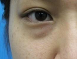 アレルギー 目の下の腫れ 突然まぶたが腫れた!!原因はアレルギー?目の腫れの原因と正しい対処法を知ろう