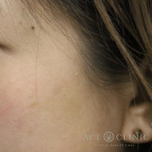 左頬 老人性色素斑 レーザー照射後1ヶ月