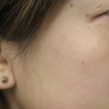 右頬 老人性色素斑 レーザー照射後1ヶ月