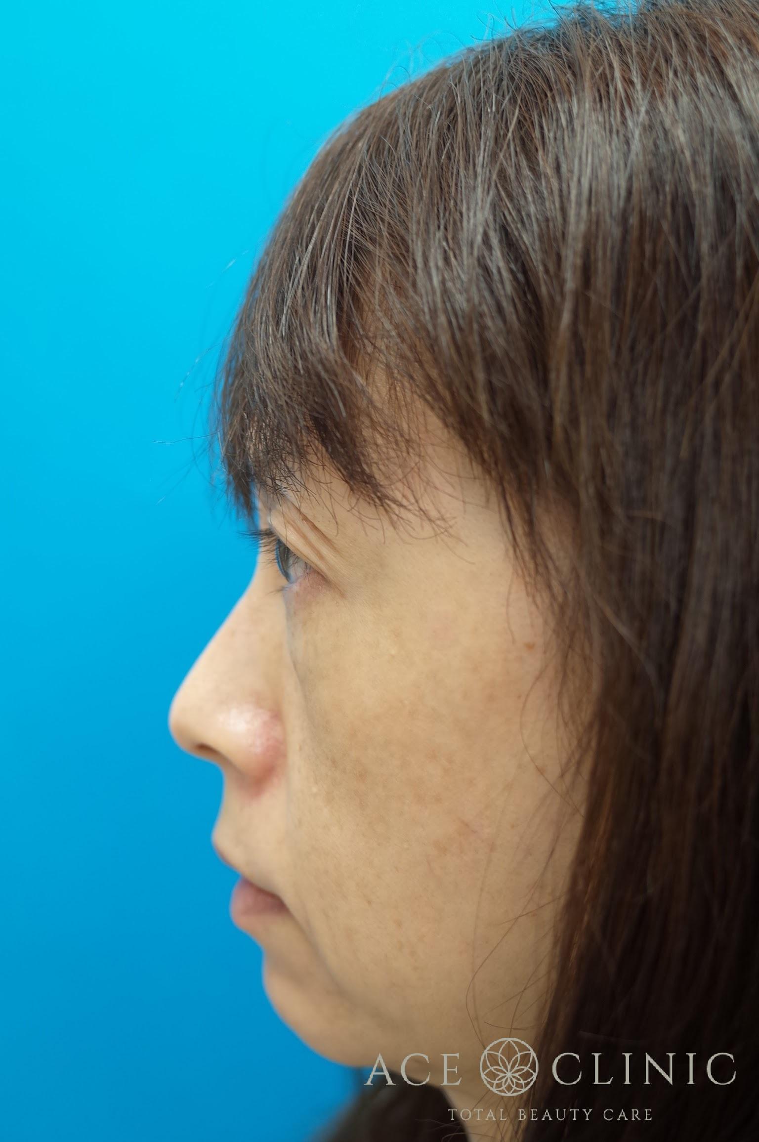 ヒアルロン酸リフト 施術前 左横
