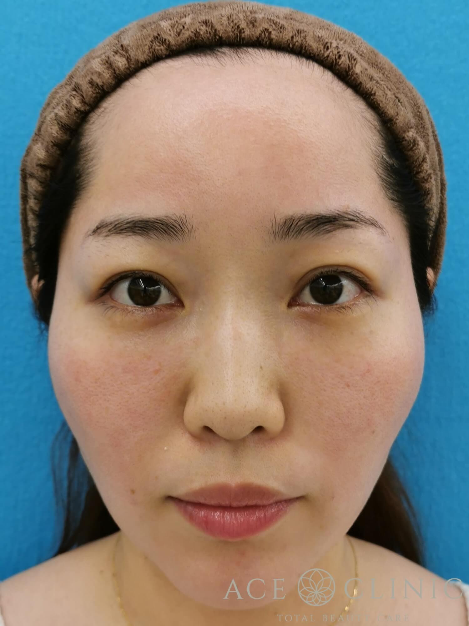 ヒアルロン酸注入(鼻・ほうれい線) 施術後 正面