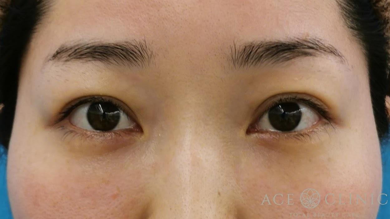 経結膜ハムラ法(裏ハムラ) 目の下のクマ治療 30代女性 術後3ヶ月正面 【エースクリニック】名古屋院・大阪梅田院