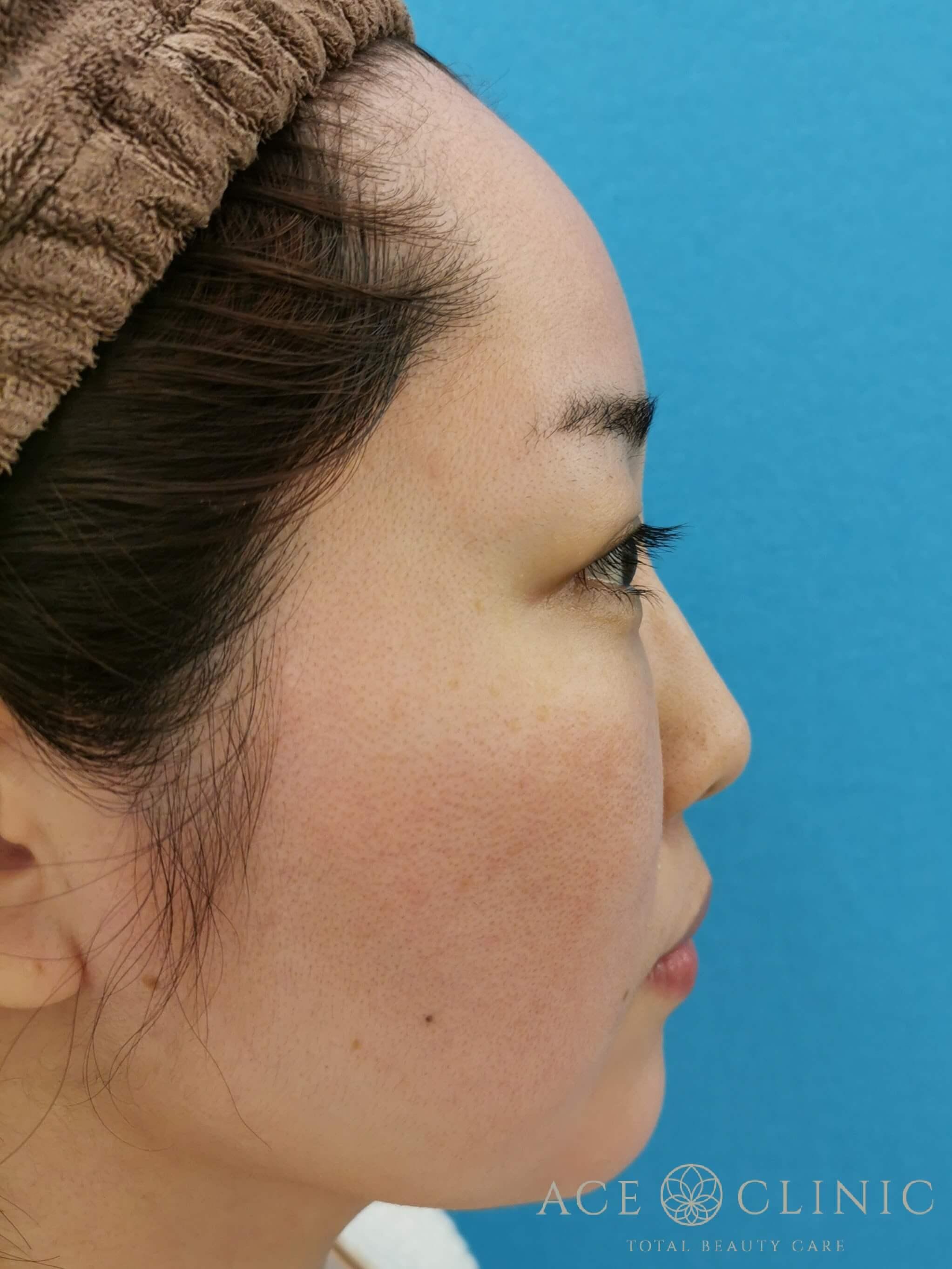 ヒアルロン酸注入(鼻・ほうれい線) 施術後 横