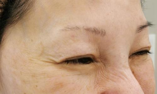 目尻のシワ ボトックス注射 治療後