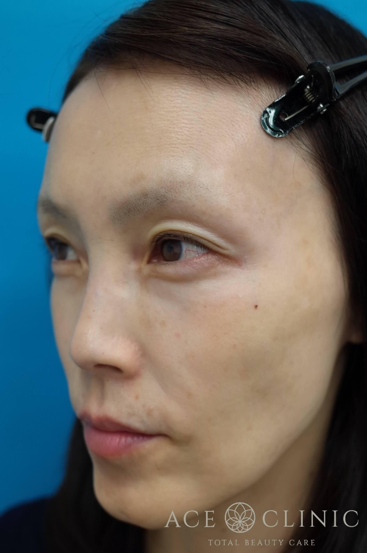 ヒアルロン酸注入(こめかみ・頬) 施術前 左斜め