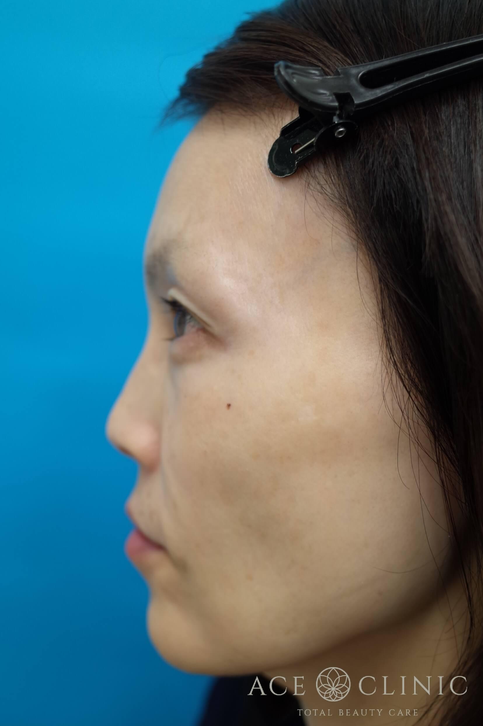 ヒアルロン酸注入(こめかみ・頬) 施術前 左横