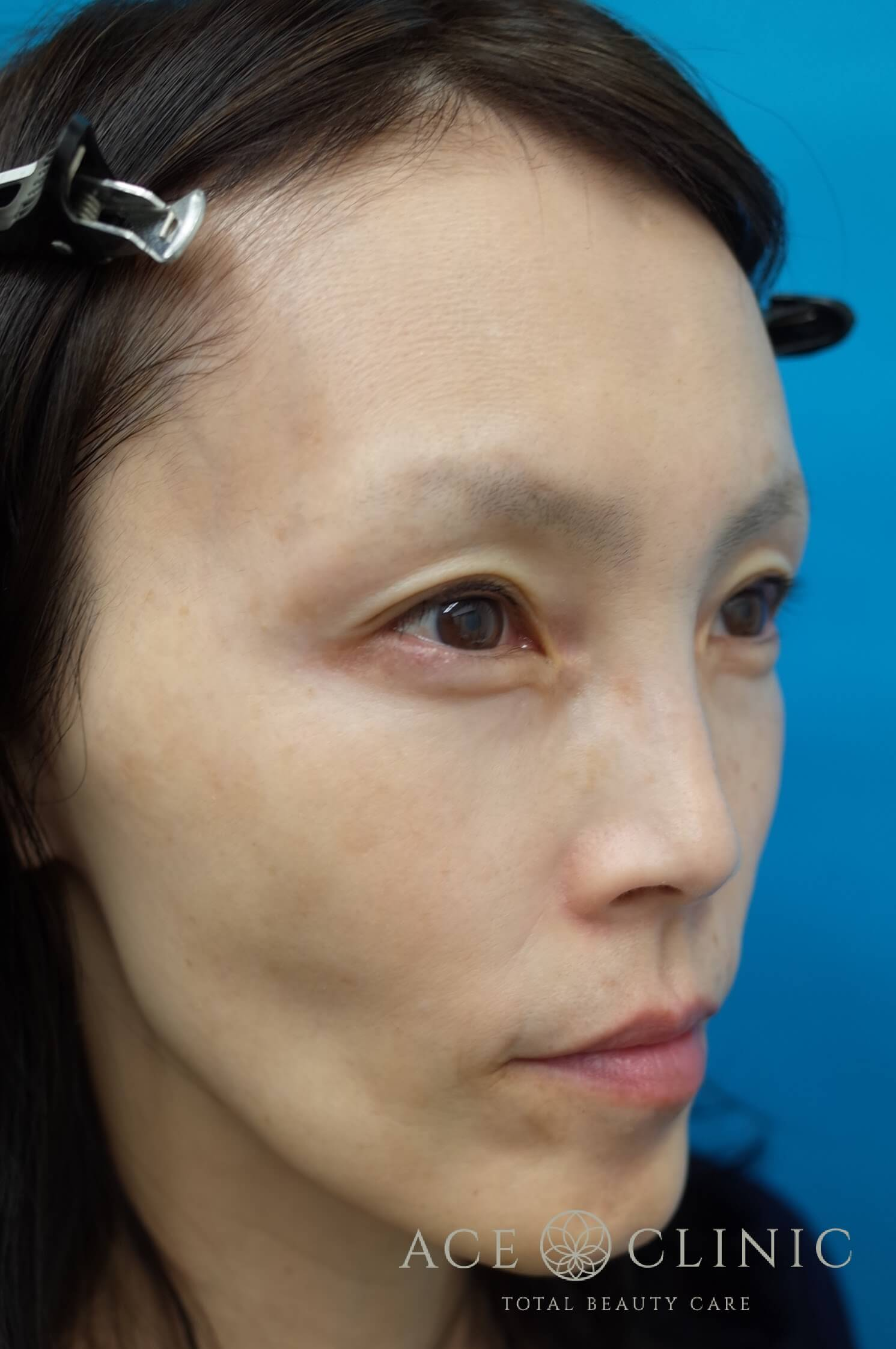 ヒアルロン酸注入(こめかみ・頬) 施術前 右斜め