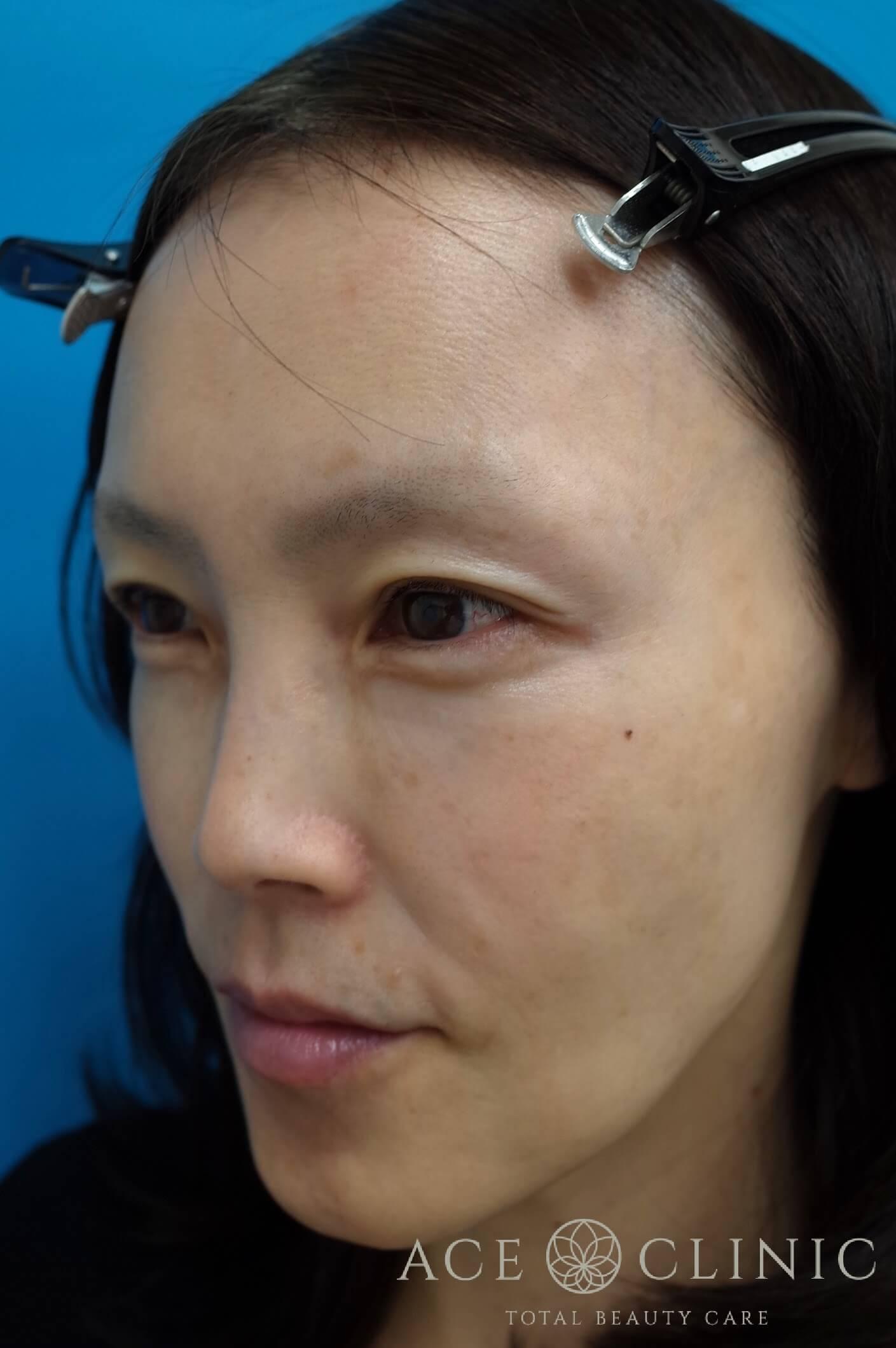 ヒアルロン酸注入(こめかみ・頬) 施術後 左斜め