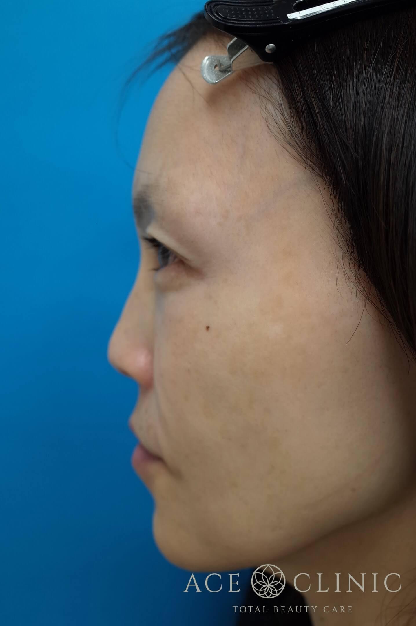 ヒアルロン酸注入(こめかみ・頬) 施術後 左横