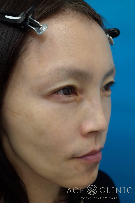ヒアルロン酸注入(こめかみ・頬) 施術後 右斜め
