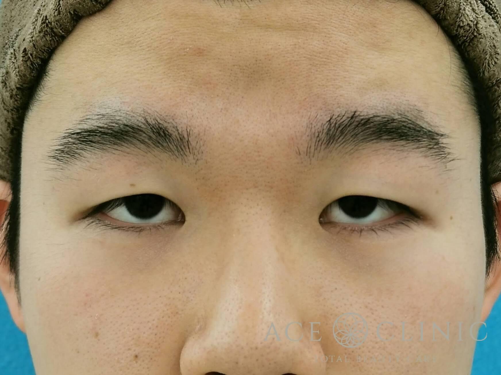 眼瞼下垂Before