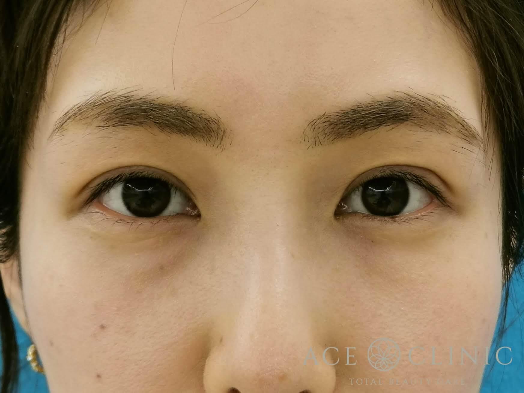 眼瞼下垂After