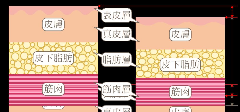 脂肪組織の減少