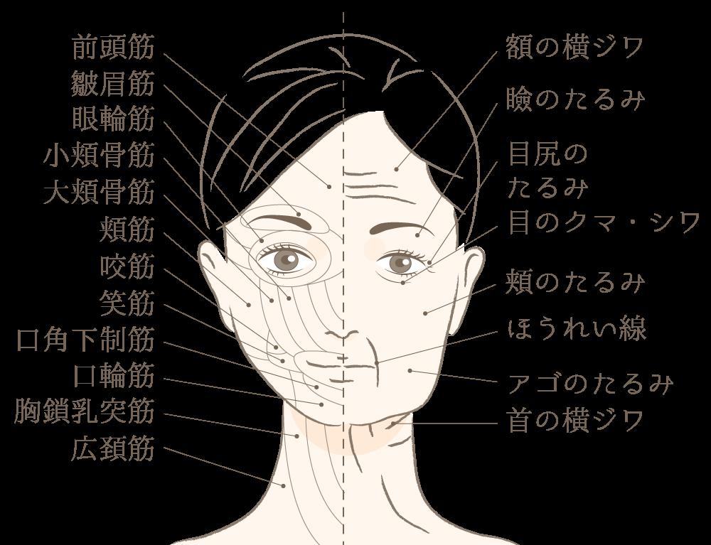 顔のパーツを挙げる筋肉の筋力低下